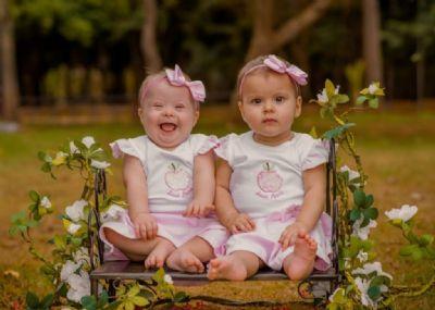 Fisioterapeuta tem gêmeas em Sorriso e uma delas nasce com Síndrome de Down