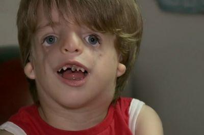 Pais de menino com síndrome tratada no filme 'Extraordinário' fazem campanha na internet para comprar aparelho
